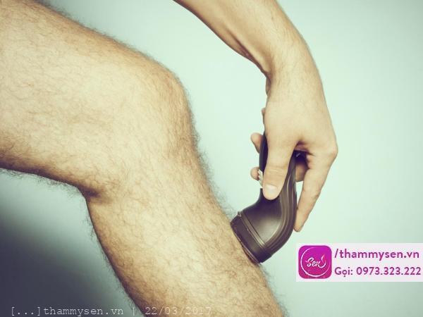 Bạn đã biết cách triệt lông vĩnh viễn cho nam giới?