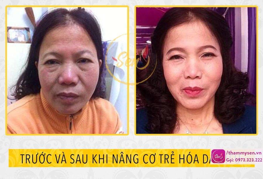 kết quả nâng cơ trẻ hóa da mặt hifu