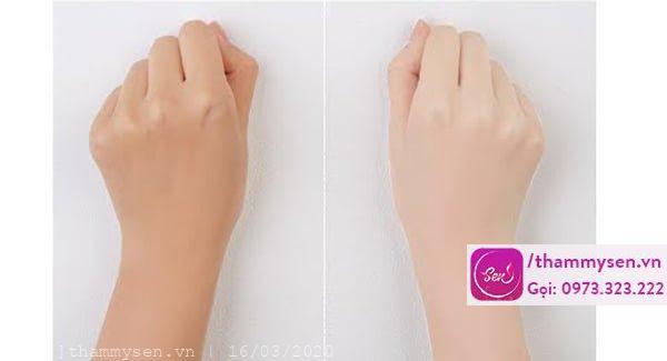 tắm trắng cánh tay, Tắm trắng cánh tay