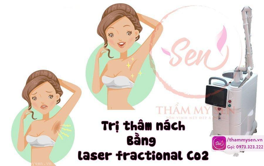 tri-tham-nach-bang-laser-fractional-co2