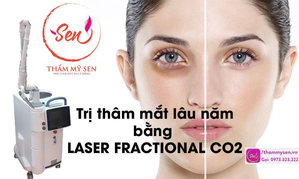tri-tham-quang-mat-lau-nam-bang-laser